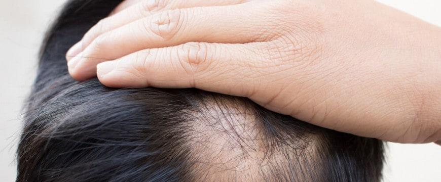 o-que-e-alopecia-androgenetica-entenda-aqui.jpeg